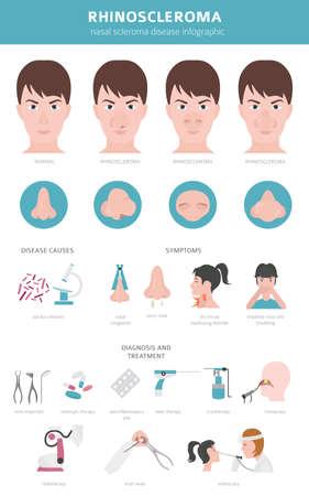 Malattie nasali. Sintomi di rinoscleroma, set di icone per il trattamento dello scleroma nasale. Progettazione infografica medica. Illustrazione vettoriale Vettoriali