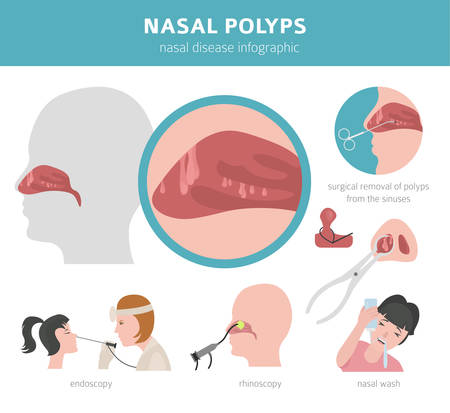 Nasal diseases. Nasal polyps causes, diagnosis and treatment medical infographic design. Vector illustration Illustration