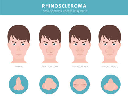Nasal diseases. Rhinoscleroma symptoms, nasal scleroma treatment icon set. Medical infographic design. Vector illustration Ilustração