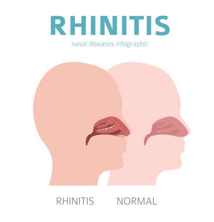 Nasal diseases. Rhinitis symptoms, treatment icon set. Medical infographic design. Vector illustration