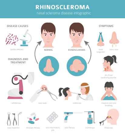 Nasal diseases. Rhinoscleroma symptoms, nasal scleroma treatment icon set. Medical infographic design. Vector illustration  イラスト・ベクター素材