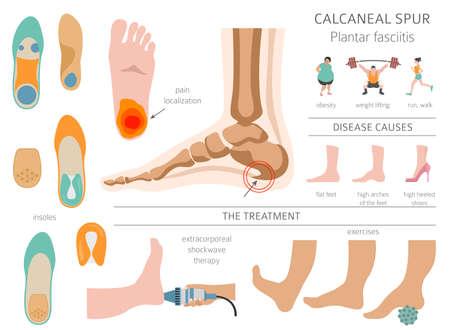Calcaneal spur. Plantar fasciitis set. Medical desease infographics collection. Vector illustration
