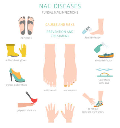 Nail diseases. Onychomycosis, nail fungal infection causes, treatment icon set. Medical infographic design. Vector illustration Ilustración de vector