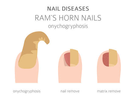 Nail diseases. Onychogryphosis, Ram`s horn nail. Medical infographic design. Vector illustration Ilustrace