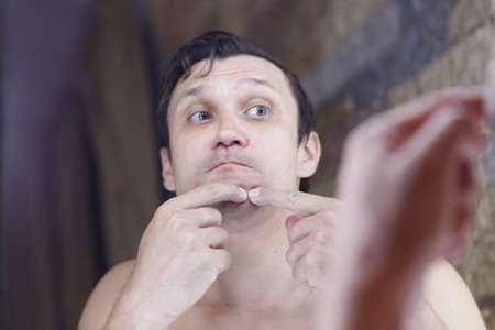 the man squeezes out a pimple on his face. the guy looks in the mirror. morning treatments in the bathroom. copyspace