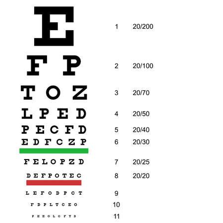 miopia: Diagramma di prova occhio l'utilizzo da parte dei medici.
