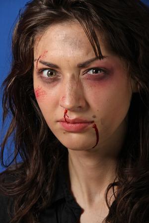 Scarred woman beaten up Stock Photo