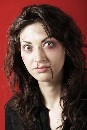 beaten up: Scarred woman beaten up Stock Photo