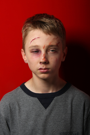 scarred: Scarred beaten up kid