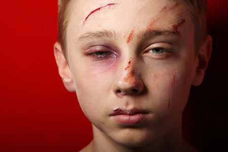 humiliated: Scarred beaten up kid