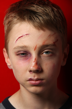 abused: Scarred beaten up kid