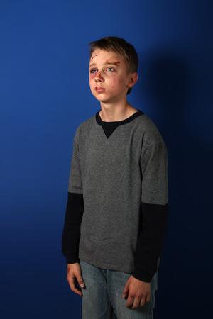 beaten up: Scarred beaten up kid