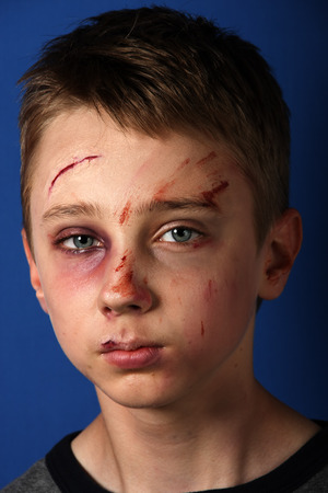 scared boy: Scarred beaten up kid