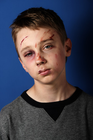 Scarred beaten up kid Stock Photo - 27470391