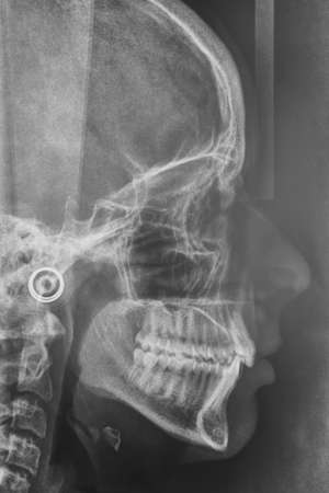 Maxilofacial X-Ray for a dentist treatment. Orthodontics diagnosis. Medical Stock Photo
