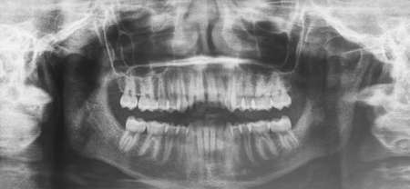 radiological: Maxilofacial X-Ray for a dentist treatment. Orthodontics diagnosis. Medical Stock Photo