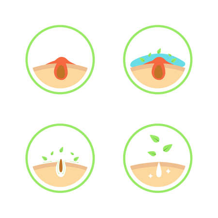 Acne or blackhead pore cleansing process with natural remedy simple diagram infographic for beauty care