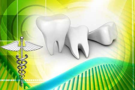 dientes con caries: Ilustraci�n digital de los dientes en el fondo digital