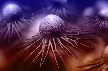 cervicales: Ilustraci�n digital de c�lulas de c�ncer en el color de fondo