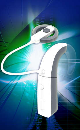 cochlear: digital illustration of Cochlear Implant in colour background Stock Photo