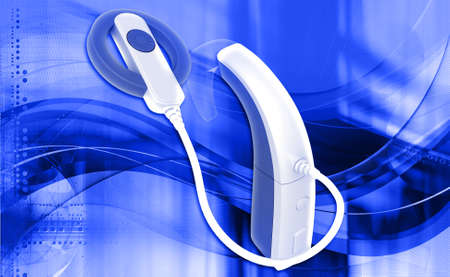 otologist: digital illustration of Cochlear Implant in colour background Stock Photo
