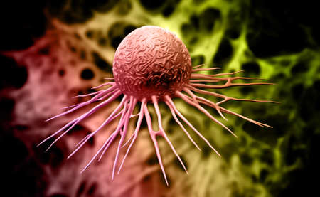 pseudopodia: Digital illustration of cancer cell in colour background