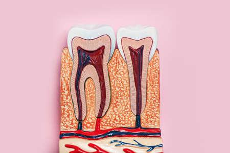 Dental teeth model in a cut on pink background.