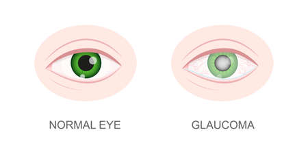 Eye healthy and with glaucoma closeup view. Normal and hazy, redness, watery eyeball. Anatomically accurate human organ of vision. Aging visual problems. Vector cartoon illustration.