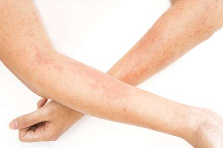 pokrzywka: Wysypki skórne, alergie kontaktowe zapalenie skóry, uczulenie na chemikalia, zakażenia grzybicze przed narażeniem