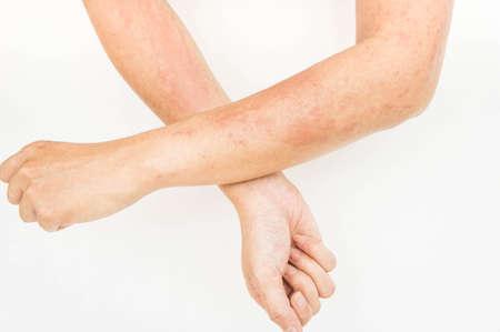 Deri döküntüleri, alerjik temas dermatitleri, kimyasallara alerjik olanlar, maruziyeden mantar enfeksiyonları Stok Fotoğraf