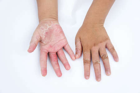 Dry hands, peel, Contact dermatitis, fungal infections, Skin infections from exposure