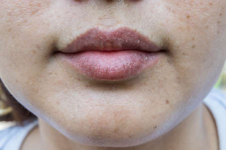 dry lips, Lack of skin lips maintenance 免版税图像 - 100245600