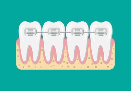 Vector teeth braces flat illustration Illustration
