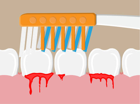 Periodontal disease, bleeding gums