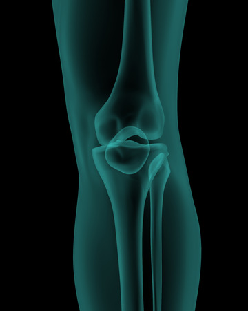 femur: front x-ray scan view of human knee