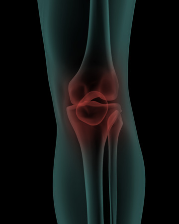 x ray image: front x-ray scan view of human painful knee