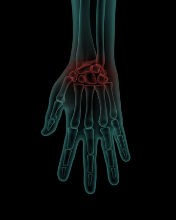 ulna: front x-ray scan view of human painful hand