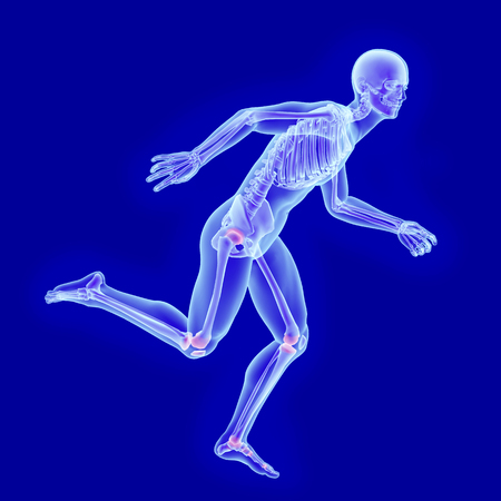 X-ray anatomy of a running man with visible skeleton and joint damage