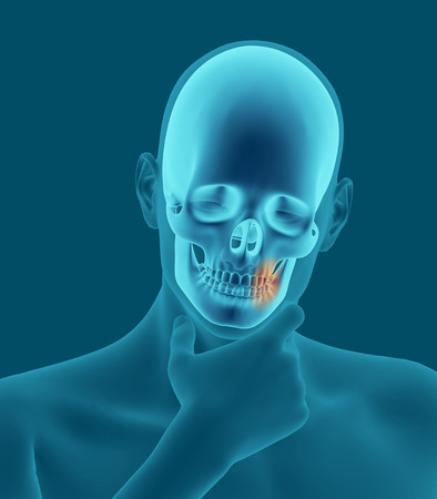 physical exam: X-ray scan of a man with a toothache 3d render