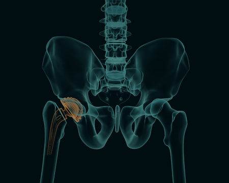 Human skeleton with a metal hip prosthesis concept arthroplasty 3d render X-ray image