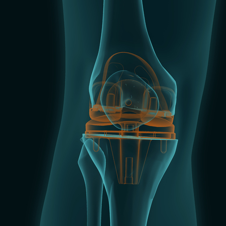 X-ray of a human knee in the frontal projection with knee replacement isolated on a black background