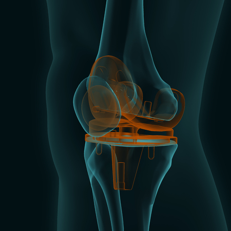 X-ray of a human knee with knee replacement isolated on a black background