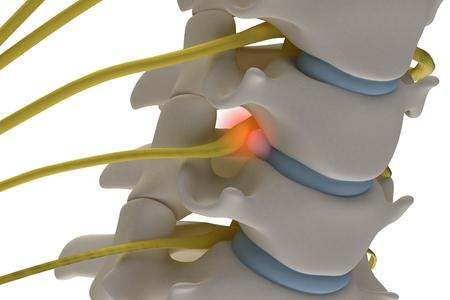 Imagen en 3D anatómicamente precisa de la columna cervical con prolapso de la raíz del nervio compresivo del disco intervertebral aislado sobre fondo blanco.