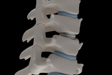 Künstliche Bandscheibenprothese wird zwischen den Halswirbeln installiert, die auf einem 3D-Renderbild der Seitenansicht mit schwarzem Hintergrund isoliert sind