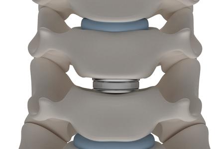 Kunstmatige tussenwervelschijfprothese wordt geïnstalleerd tussen de halswervels geïsoleerd op een witte achtergrond 3d render afbeelding