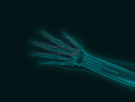 X-ray image of a human hand with carpal tunnel syndrome 3d render medical illustration
