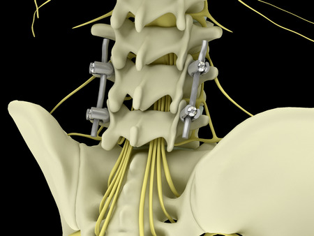 Metal pedicle screw fixation system with flexible rods in the lumbar spine isolated on  black background 3d illustration