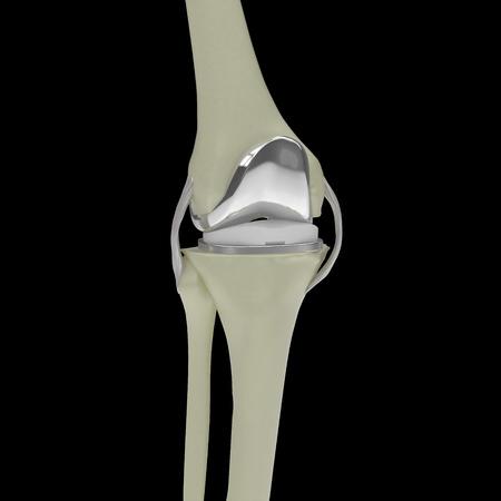Genou humain avec remplacement du genou isolé sur fond noir image de rendu 3D
