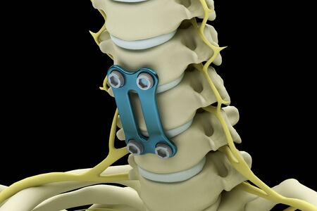 Cervical vertebrae fixed with a metal plate and screws isolated on a black background. 3d render illustration. 스톡 콘텐츠