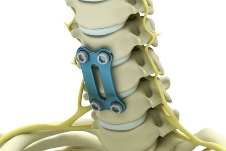 Cervical vertebrae fixed with a metal plate and screws isolated on a white background. 3d render illustration. Reklamní fotografie